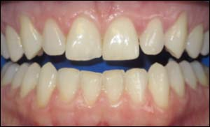 Before Zoom Smile Whitening